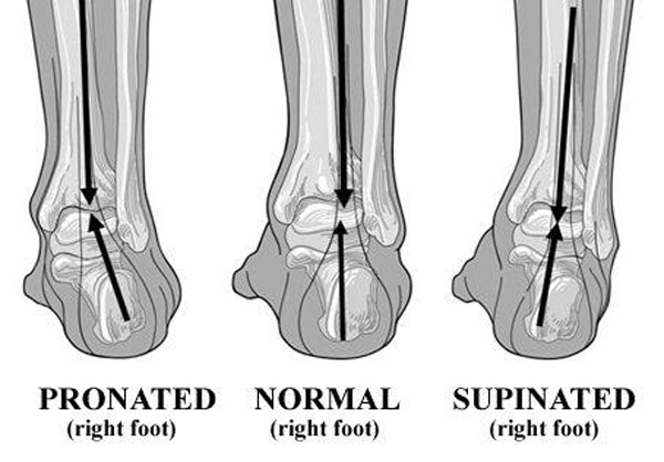 type of foot
