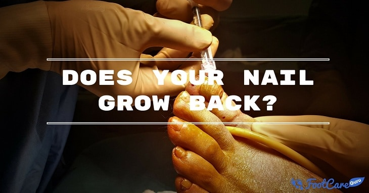 After Ingrown Toenail Surgery Does The Nail Grow Back? You Need To