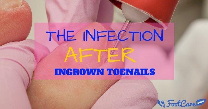 Infection After Ingrown Toenail