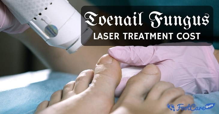 Laser Toenail Fungus Removal Cost