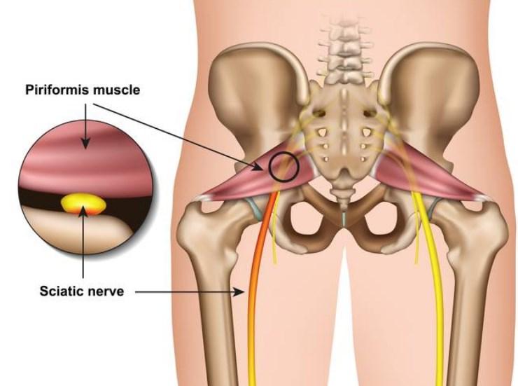 Sciatic Nerve Causes