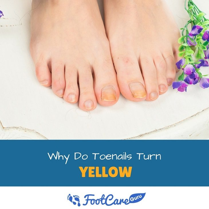 Why Do Toenails Turn Yellow? | Healthier Land