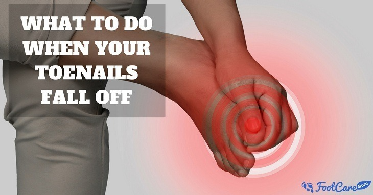 What To Do When Your Toenails Fall Off? How To Prevent It ...