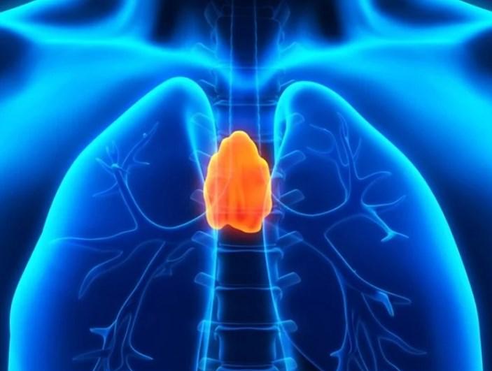 Thymic carcinoma